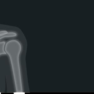 Требования охраны труда при работе в рентгеновских кабинетах